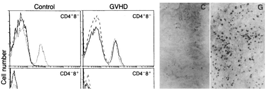 皮膚のgraft versus host disease (GVHD)に関する研究